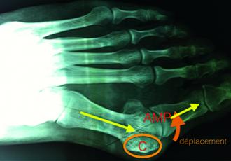 Hallux Valgus : opération, traitement et prise en charge de la douleur