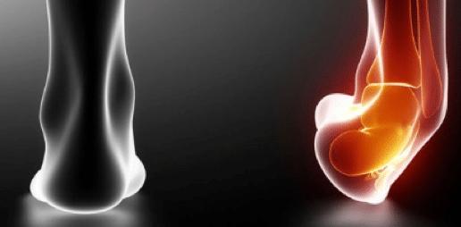 Instabilité chronique de la cheville : traitement par arthroscopie