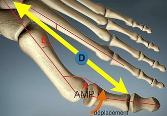 Tête de l'os métatarsien qui se déplace vers la peau