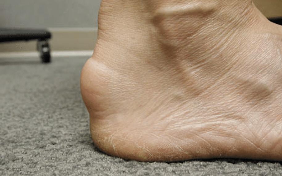 Tendons : l'enthesopathie calcifiante, image du pied