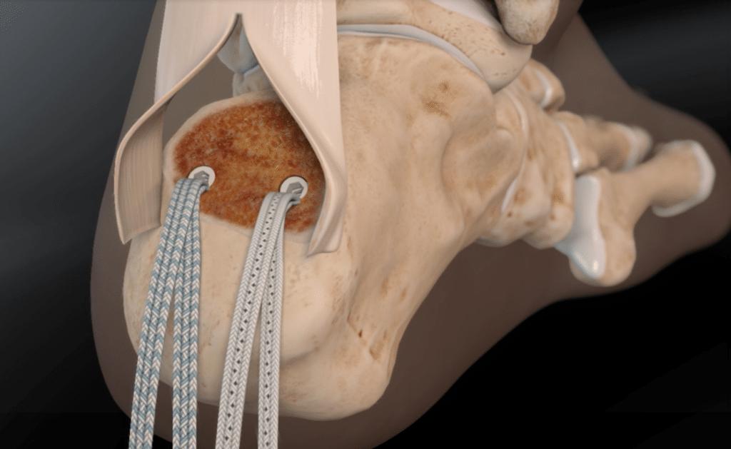 Tendons d'Achille : speed bridge pour traitement de l'enthesopathie calcifiante