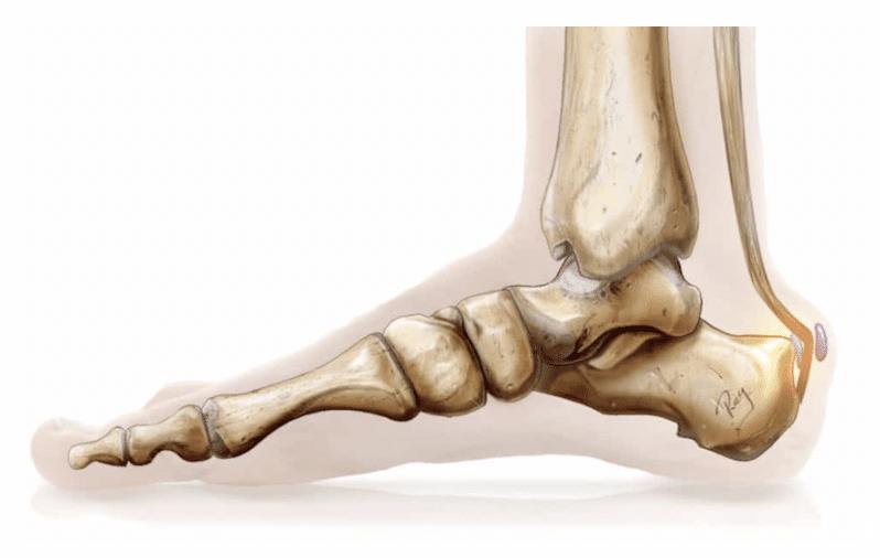 Tendons, conflit rétro calcanéen ou maladie de Haglund : traitement médical et examens