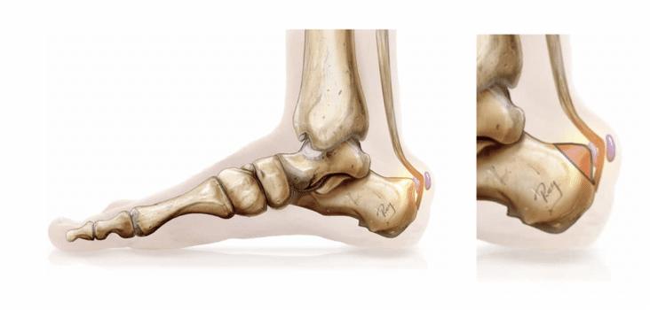 Tendons, conflit rétro calcanéen ou maladie de Haglund : traitement médical