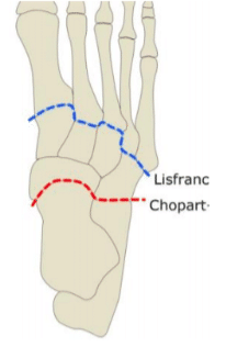 Fracture du Lisfranc : anatomie