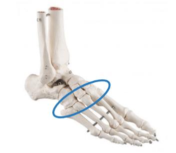Fracture du Lisfranc : les suites du traitement