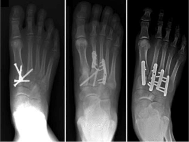 Fracture du lisfranc : fixation par plaques et vis