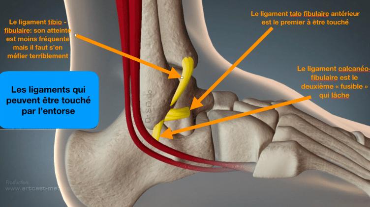 Entorse de cheville : quand les ligaments lâchent