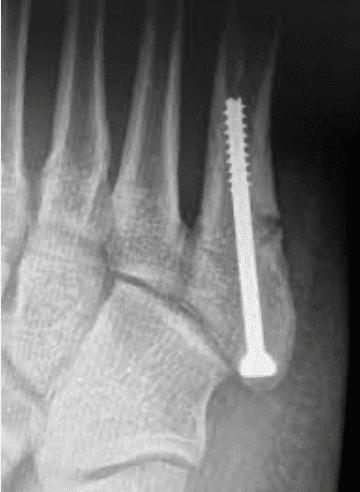 Traitement de la fracture de fatigue du pied