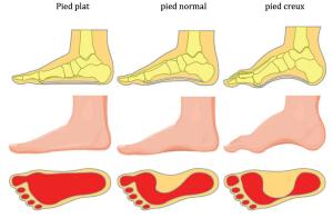 Pourquoi faut-il traiter le pied creux ?