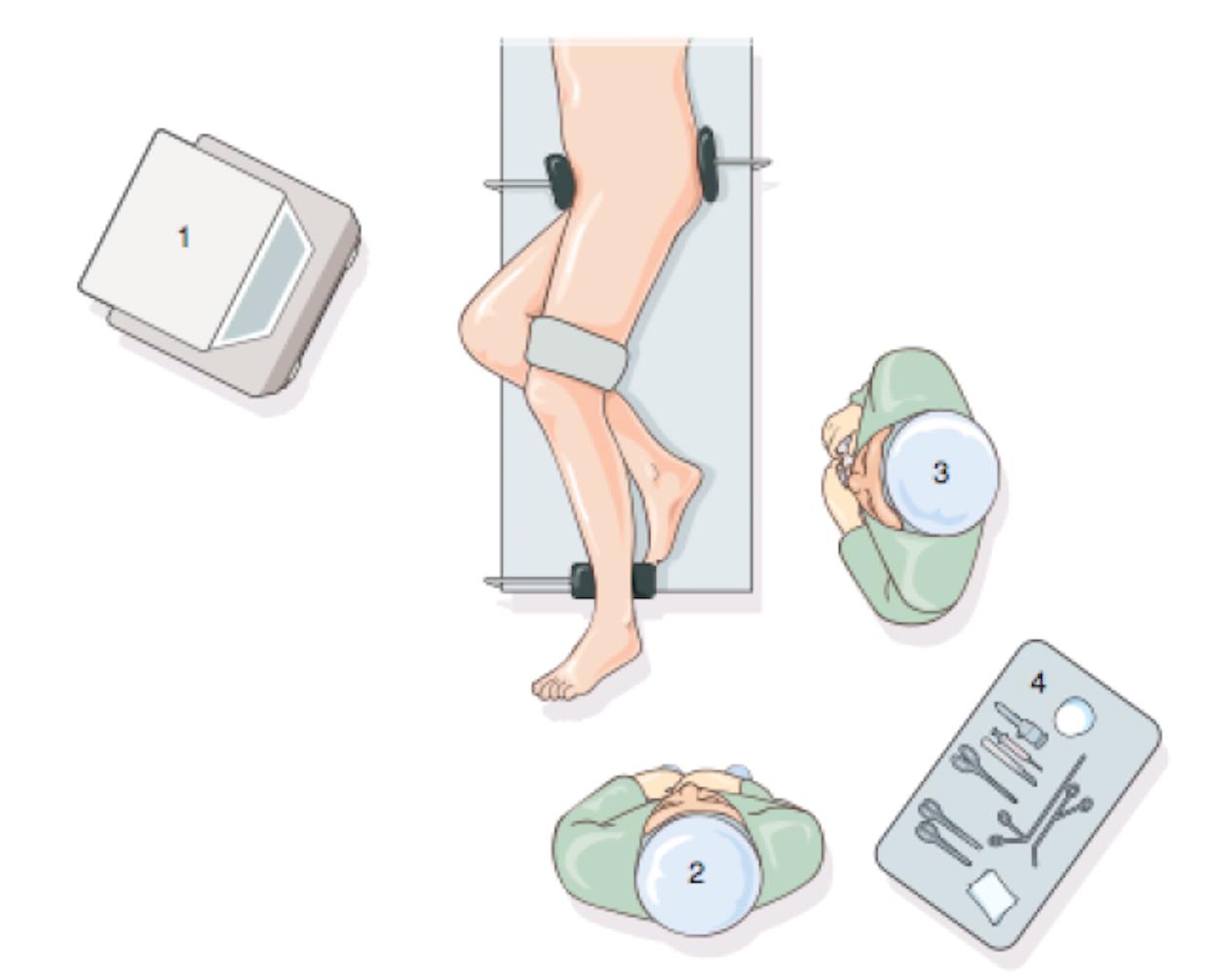 Tendinopathie des fibulaires : traitement par tendinoscopie