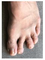 Orteil en griffe : exemple clinodactylie du 2ème orteil