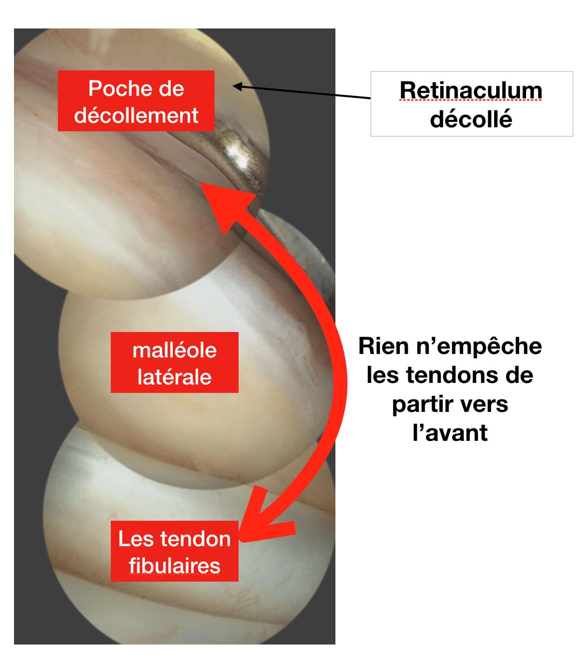 Luxation des tendons fibulaires : intervention sous arthroscopie