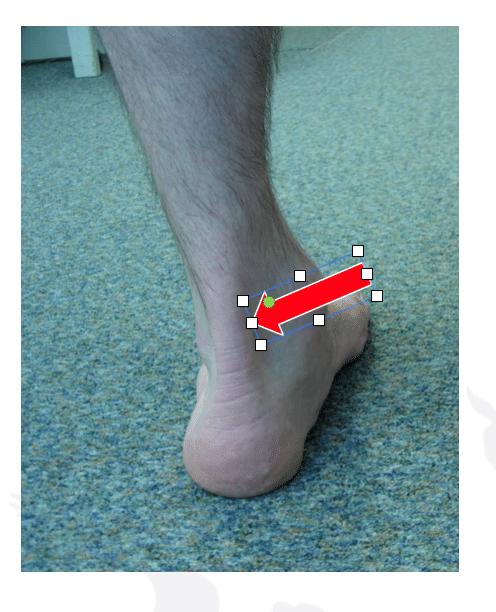 Traitement de la tendinite du tendon d'Achille : localisation