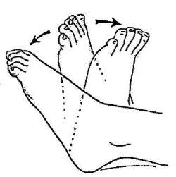 Rééducation après une arthroplastie de la cheville