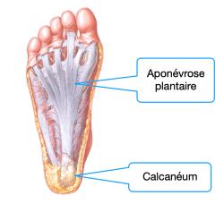 Anatomie de l'aponévrose plantaire, inflammation de l'aponévrose plantaire