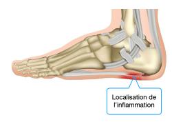 Anatomie de l'aponévrose plantaire : localisation de l'inflammation