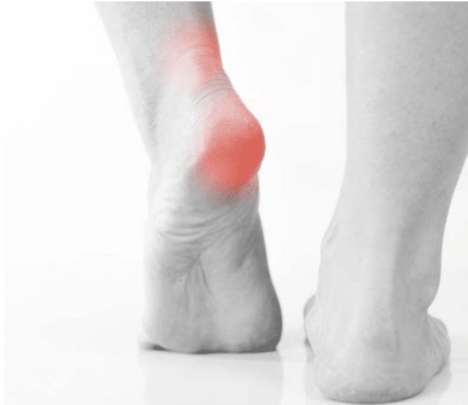 Tendons et douleurs au talon : les causes