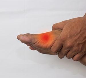 Pathologies du pied : douleurs de l'avant-pied