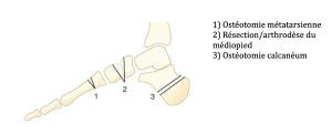 Les griffes d'orteil