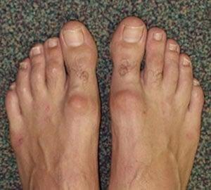 Hallux rigidus : symptômes et description
