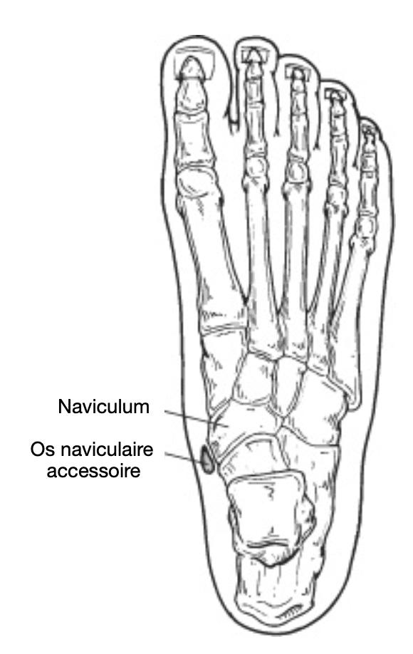 Pied : traitement et anatomie de l'os naviculaire accessoire