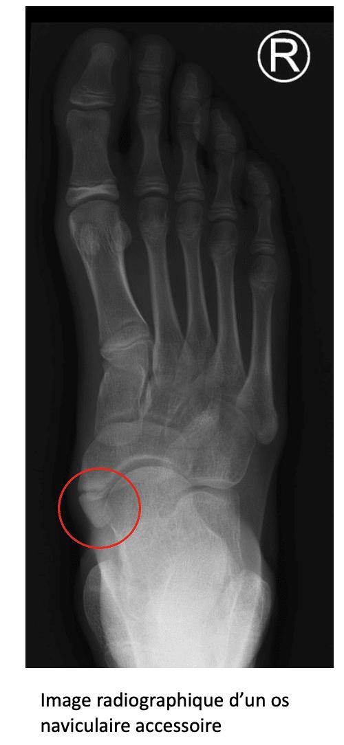 Pied : traitement de l'os naviculaire accessoire