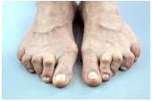 Orteil en griffe : exemple de griffes totales