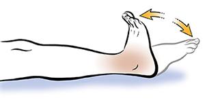 Rééducation après la pose d'une prothèse de la cheville