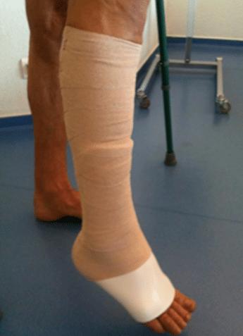 Rééducation après une chirurgie suite à rupture du tendon d'Achille
