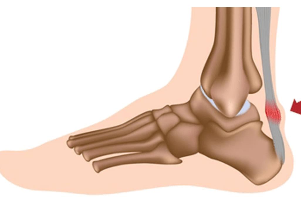 Tendinopathie du tendon d'Achille : anatomie