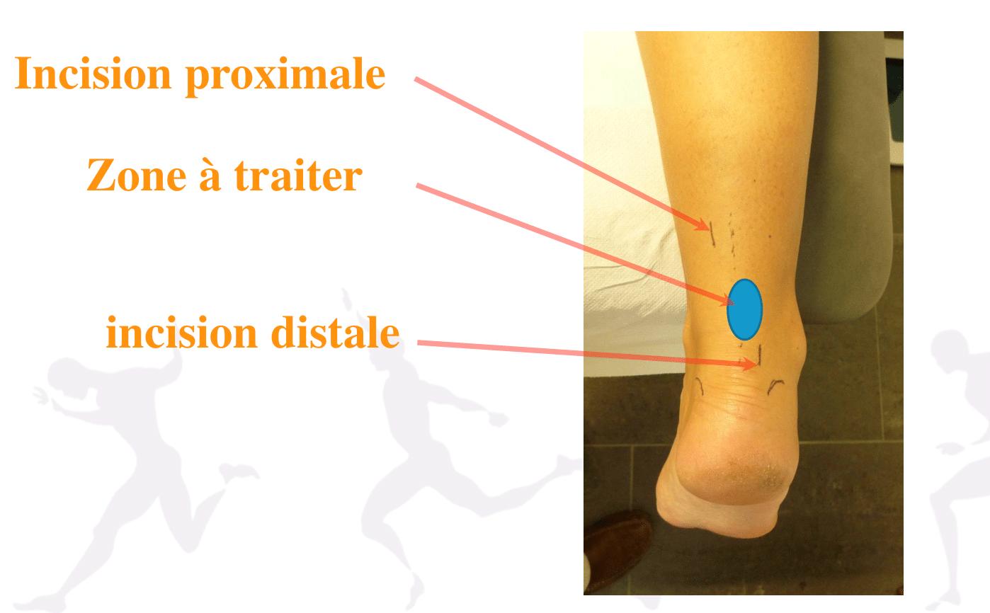 Traitement de la tendinite du tendon d'Achille