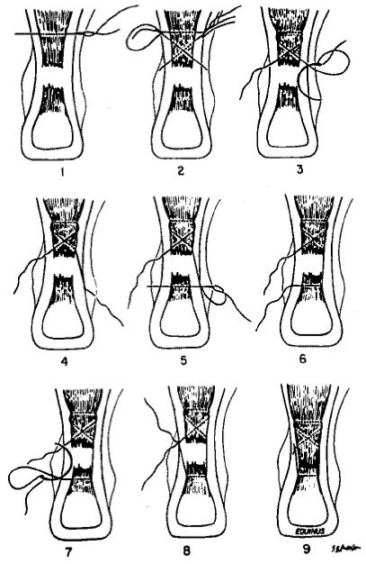 Traitement de la rupture du tendon d'Achille