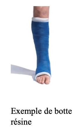 Traitement de la fracture de fatigue du pied : botte en résine