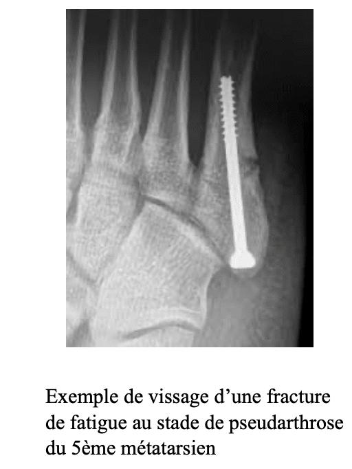 Traitement de la fracture de fatigue du pied : vissage