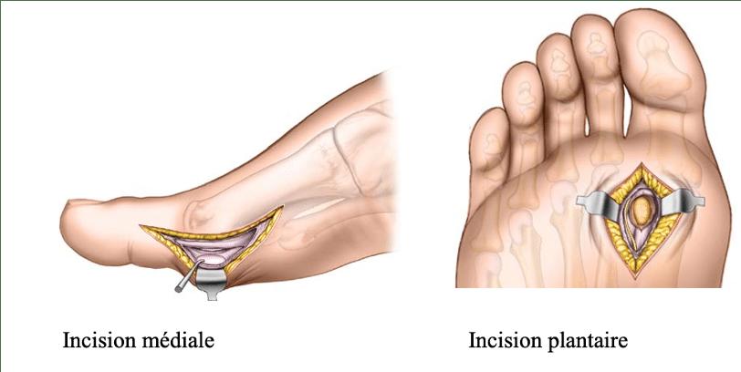 Traitement de la sesamoidite : incisions plantaire et médiale