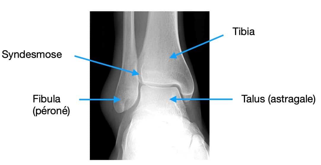 La fracture de cheville : qu'est-ce que c'est ?