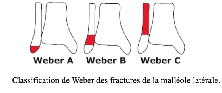 Fracture de cheville : les fractures de la malléole latérale ou fractures de Weber