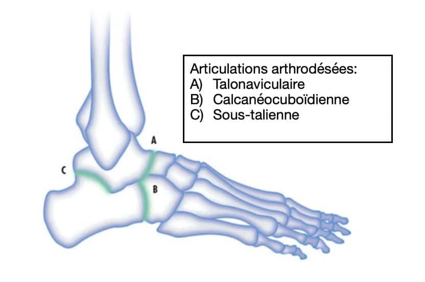 Traitement du pied plat : utilisation des arthrodèses
