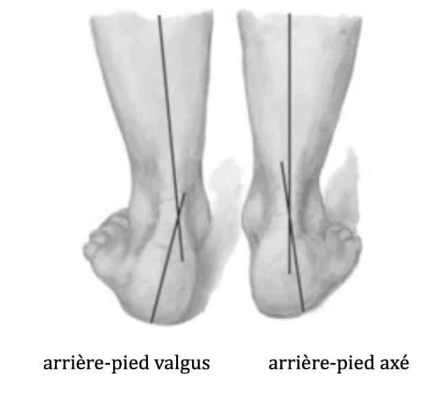 Pied plat : déformation en valgus de l'arrière-pied