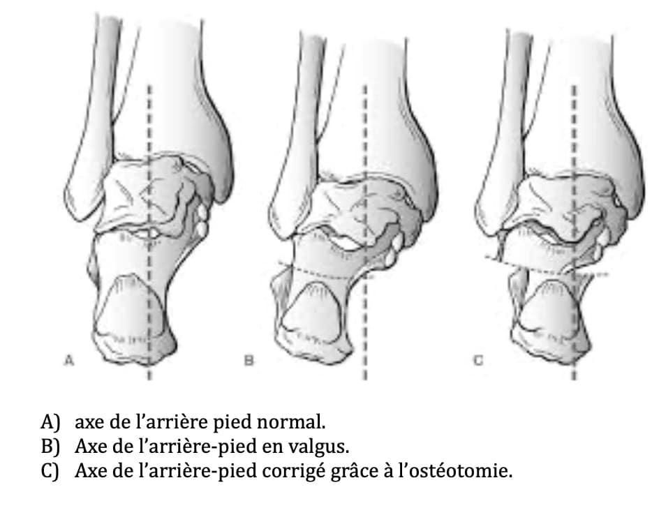 Traitement du pied plat : ostéotomie du calcanéum médialisant le talon
