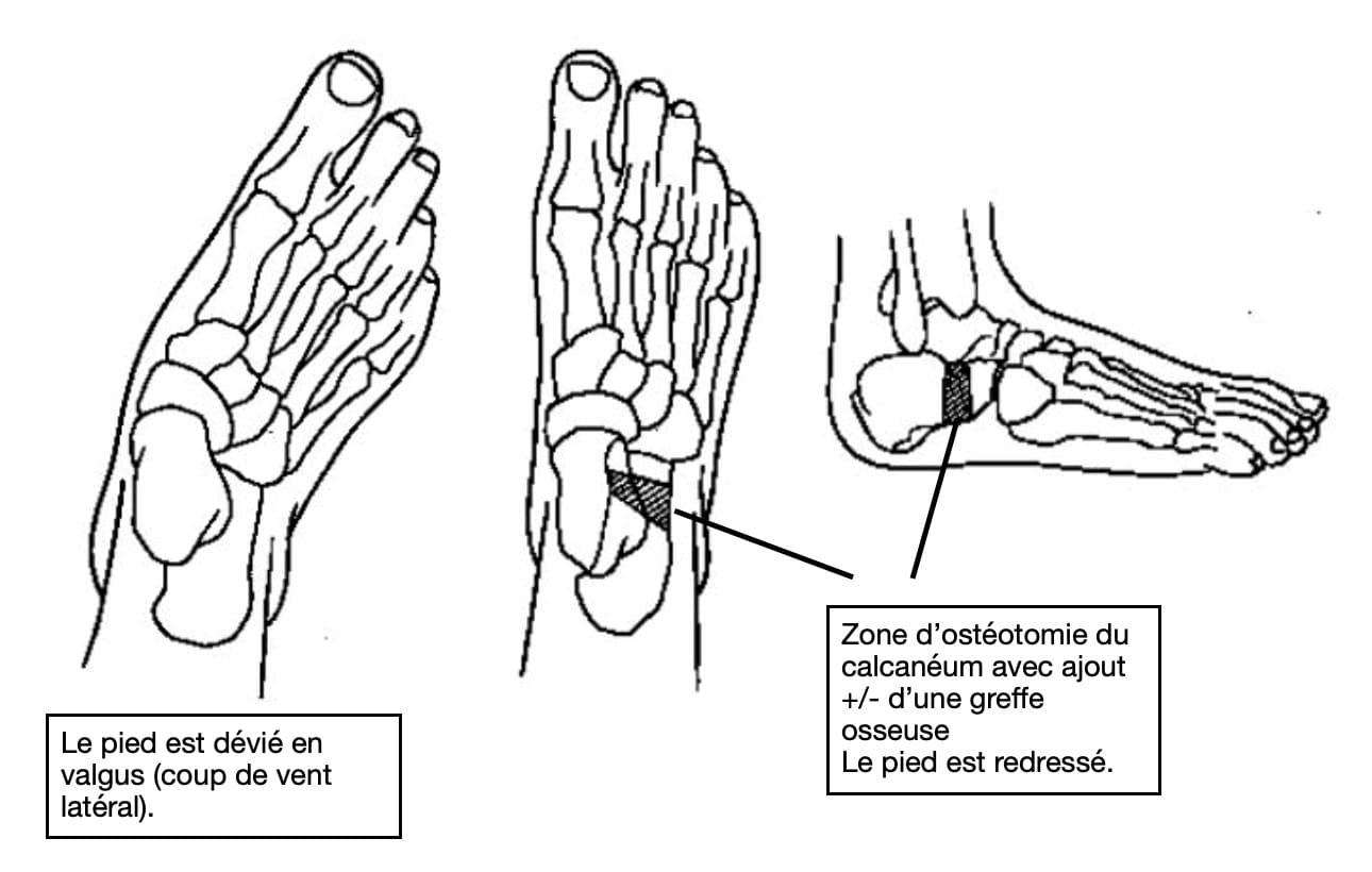 Traitement du pied plat : ostéotomie d'Evans du calcanéum,