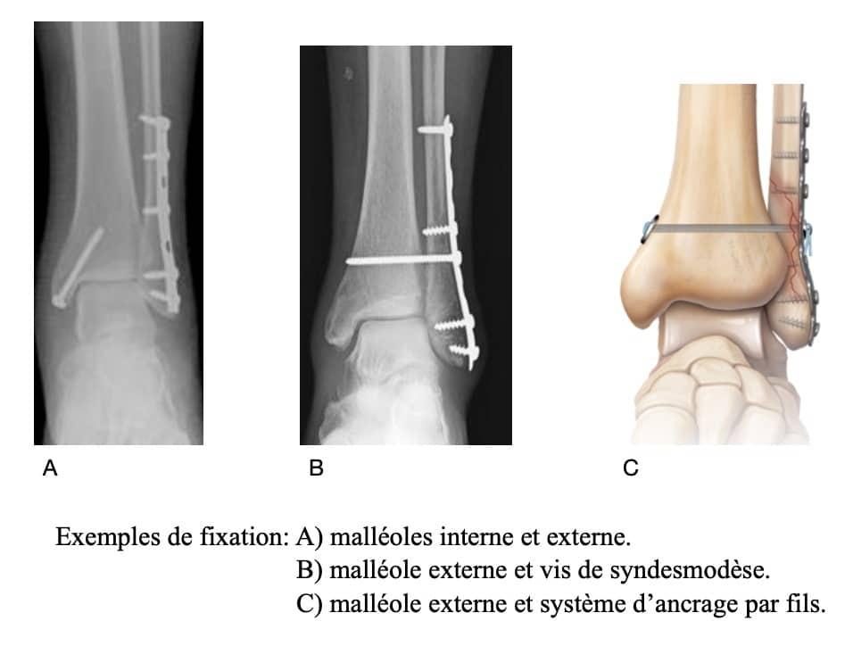 Traitement des fractures de cheville : l'opération et les systèmes de fixation
