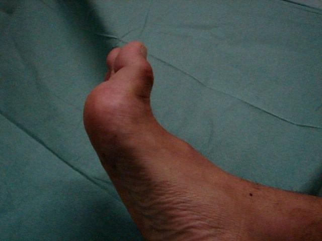 Turf toe : aspect en extension (flexion dorsale du gros orteil)