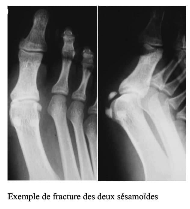 Fracture des deux sésamoïdes