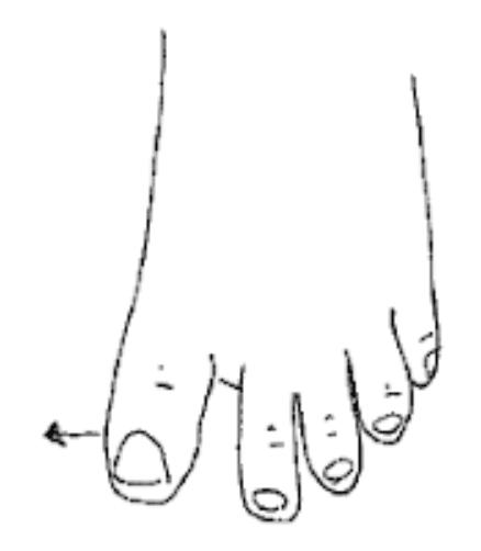 Autorééducation du gros orteil dans les suites d'un turf toe : écarter le gros orteil