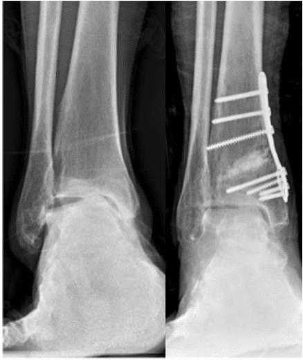 Arthrose de la cheville : osteotomie sus malléolaire