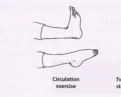 Protocole de Stanish : exercice de circulation