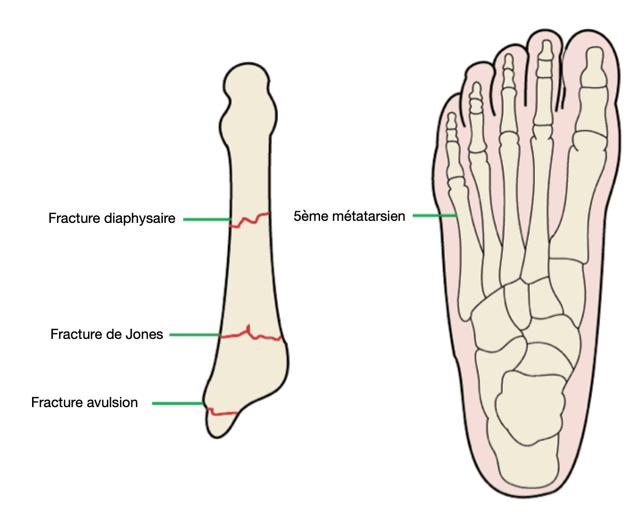 Fracture de Jones : 5ème métatarsien