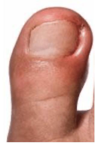 Ongle incarné infecté