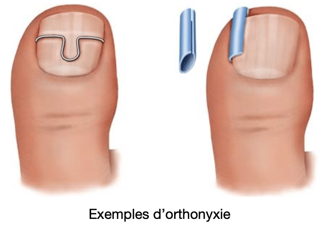 Orthonyxie pour ongle incarné